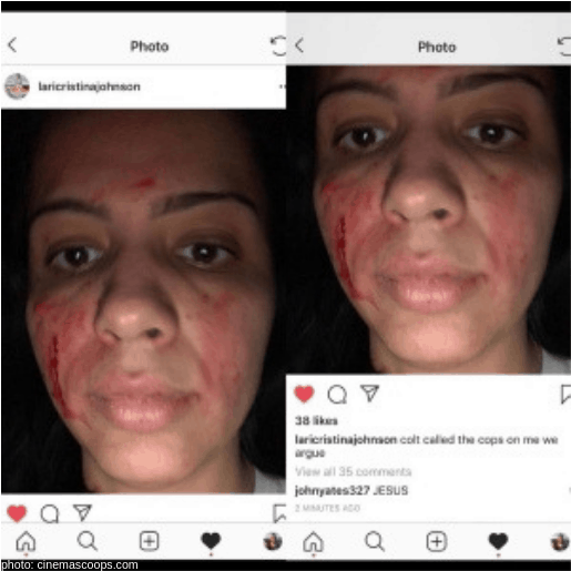 larissa 90 day fiance self inflicted wounds