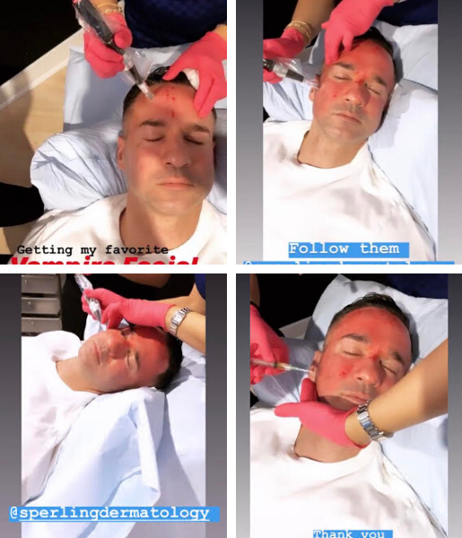 mike the situation vampire facial