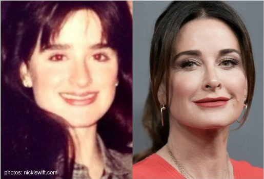 rhobh then and wow transformation kyle richards