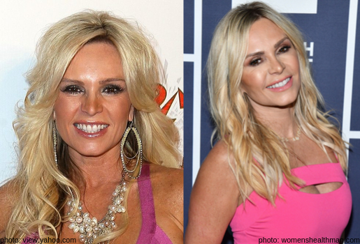 rhoc tamra barney judge transformation then and wow